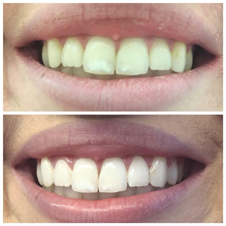 smile brilliant beforeafter photo